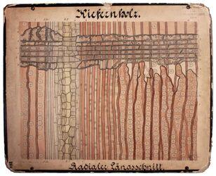 Holz, Kiefern-; radialer Längsschnitt